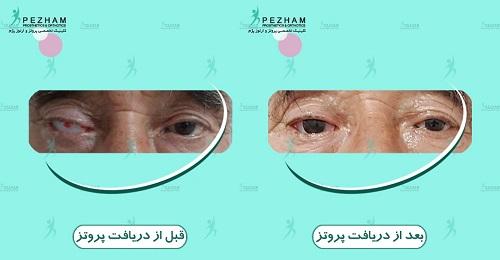 پروتز چشم یا چشم مصنوعی در کلینیک پژم