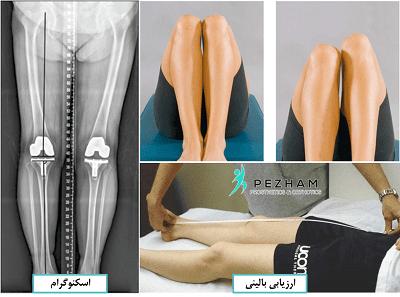 روش های تشخیص کوتاهی پا